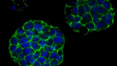 Photo of La cura per il cancro passa dalla stampa 3D