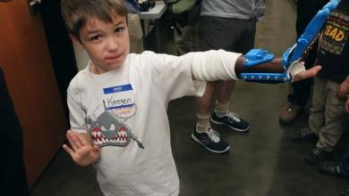 Photo of Una mano stampata in 3D per far sentire il piccolo Keegen Bair un po' come Luke Skywalker