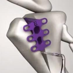 dog-3d-printed-implant