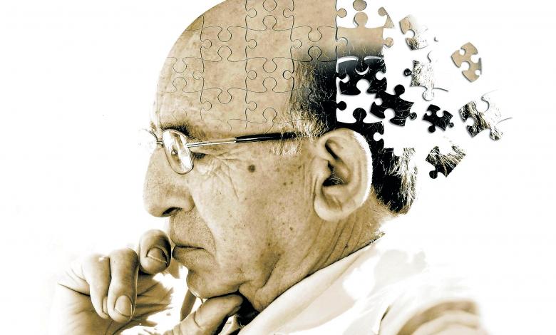 stampa 3D medicina Alzheimer