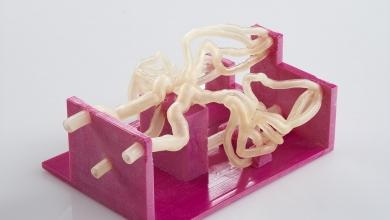 Photo of Dalla TAC alla riproduzione 3D: la pianificazione chirurgica sempre più rapida e precisa.