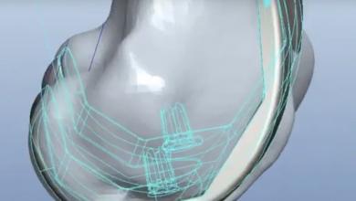 Photo of Impiantata a Bologna una protesi totale di ginocchio stampata in 3D da Rejoint