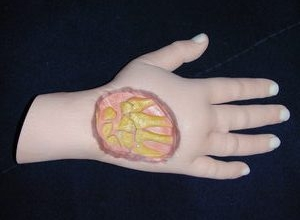 Photo of Chirurgia della mano: Policlinico di Modena e IOR fanno ricorso all'ausilio della stampa 3D