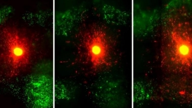 Photo of Il modello cerebrale biostampato e la tecnica di imaging aiutano a far avanzare la ricerca sul tumore