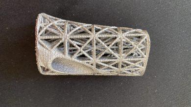 Photo of Fissatore tibiale stampato in 3D dal NHS può salvare i pazienti dalle amputazioni