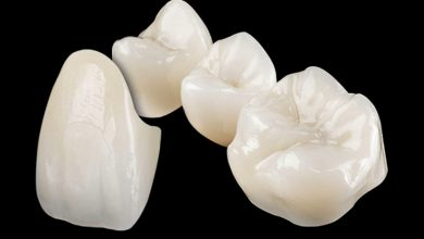 Photo of Lithoz costituisce una partnership per impianti dentali in ceramica stampati in 3D
