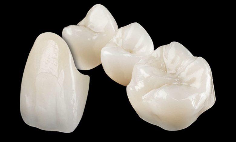 Photo of Lithoz costituisce una partnership per impianti dentali in ceramica stampati in 3D