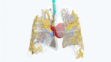 Photo of I medici di Belfast studiano gli effetti COVID-19 con un modello polmonare stampato in 3D