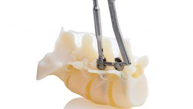 Photo of La stampante Stratasys J750 crea modelli ossei ultra realistici
