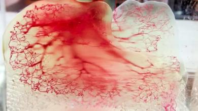 Photo of 3D Systems si espande nel bioprinting con una svolta nella rigenerazione polmonare