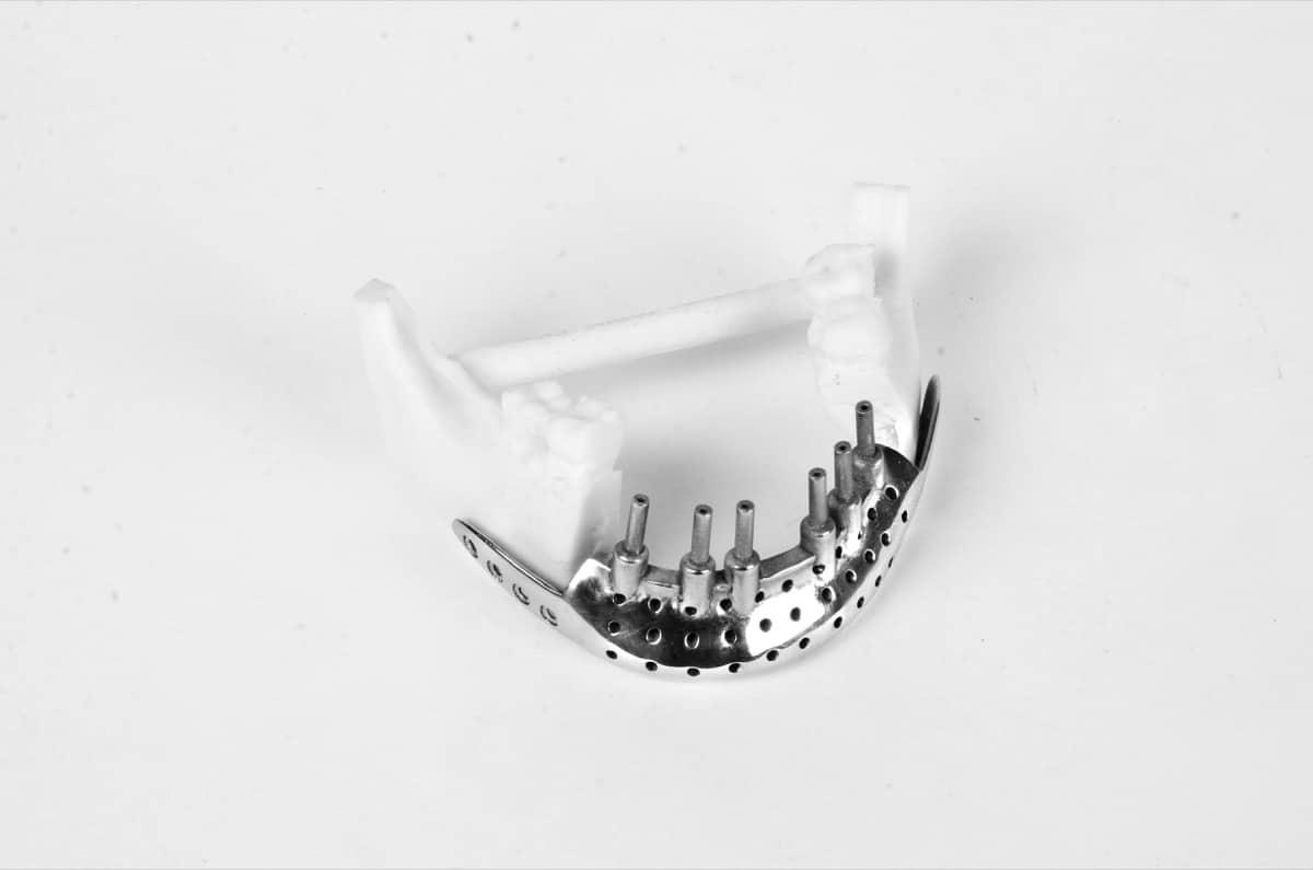 3D Incredible) è stato uno dei pionieri in India per la stampa 3D in metallo con un impianto AM all'avanguardia situato a Pune.L